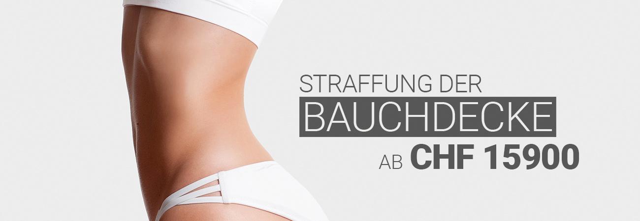 Bauchdeckenstraffung bei M1 Med Beauty Swiss