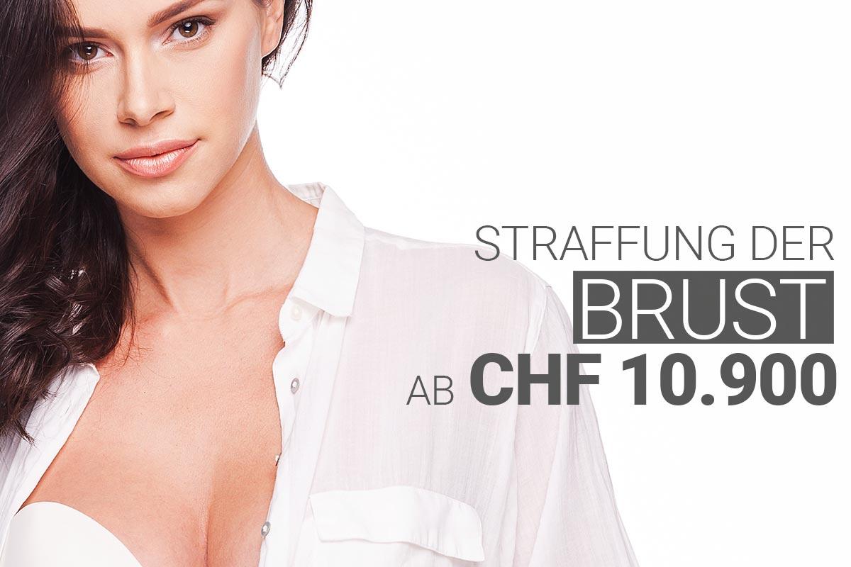 Bruststraffung bei M1 Med Beauty Swiss