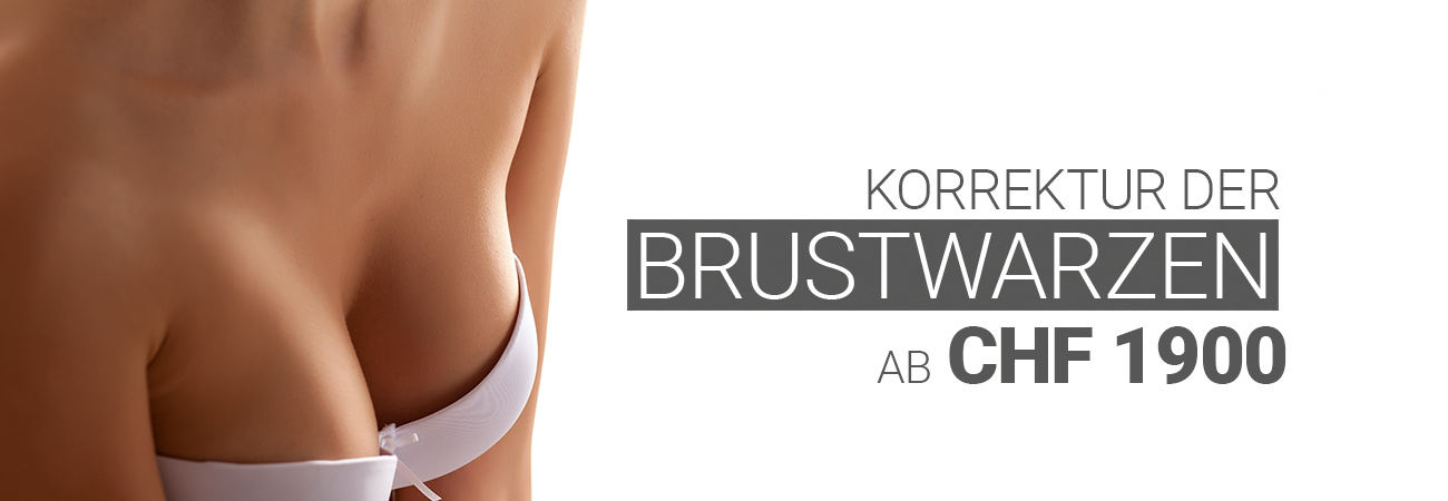 Brustwarzenkorrektur bei M1 Med Beauty Swiss
