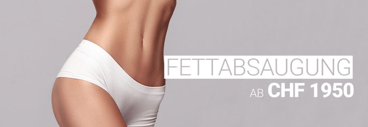 Fettabsaugung / Liposuktionbei M1 Med Beauty Swiss