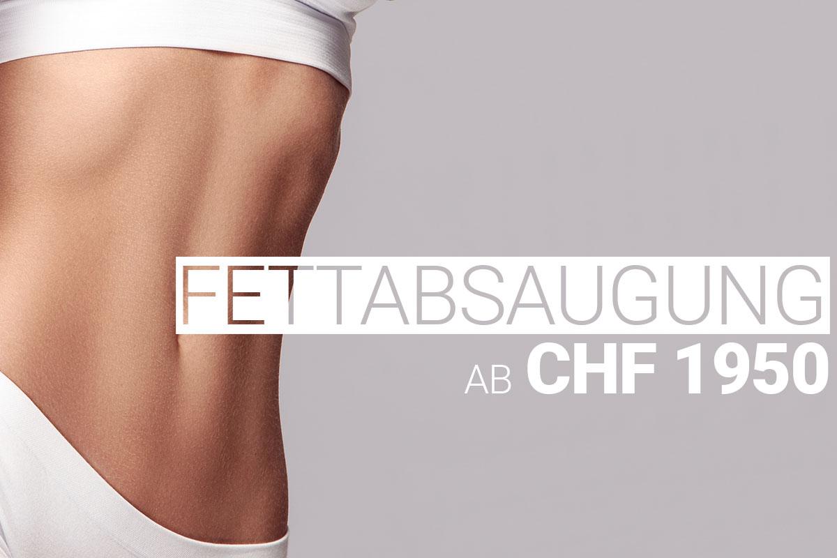 Fettabsaugung / Liposuktion bei M1 Med Beauty Swiss