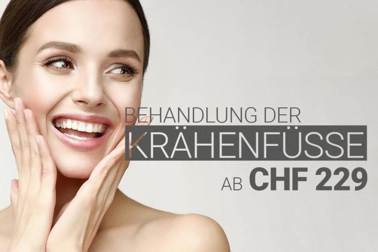 Krähenfüssebehandlung mit Muskelrelaxans bei M1 Med Beauty Swiss