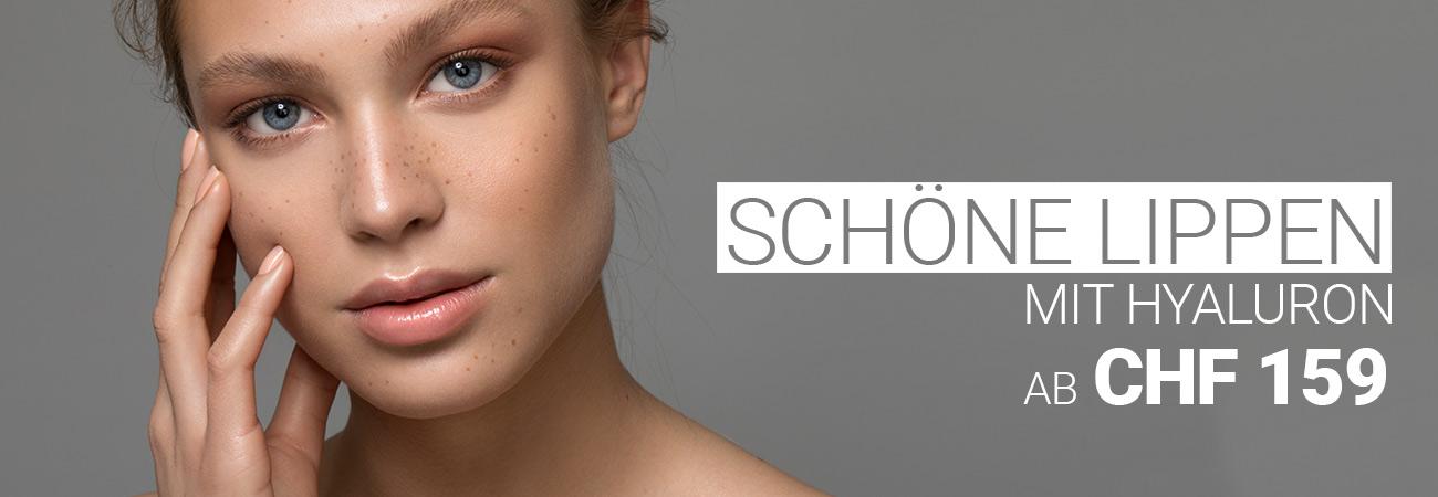 Lippenunterspritzung mit Hyaluron bei M1 Med Beauty Swiss