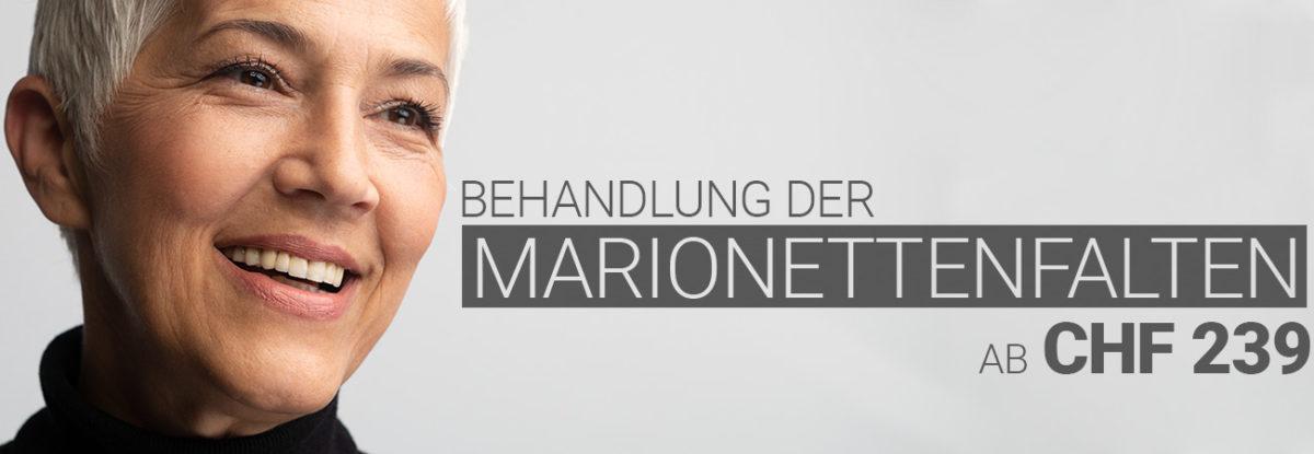 Marionettenfaltenbehandlung mit Hyaluron bei M1 Med Beauty Swiss