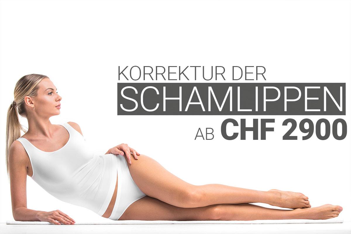 Schamlippenkorrektur bei M1 Med Beauty Swiss