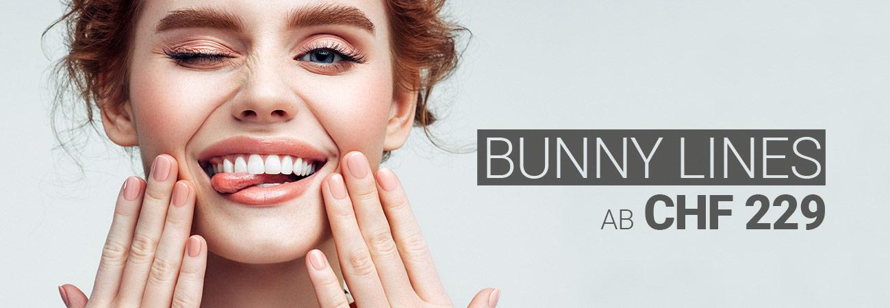 Bunny-Lines-Behandlung mit Muskelrelaxans bei M1 Med Beauty Swiss