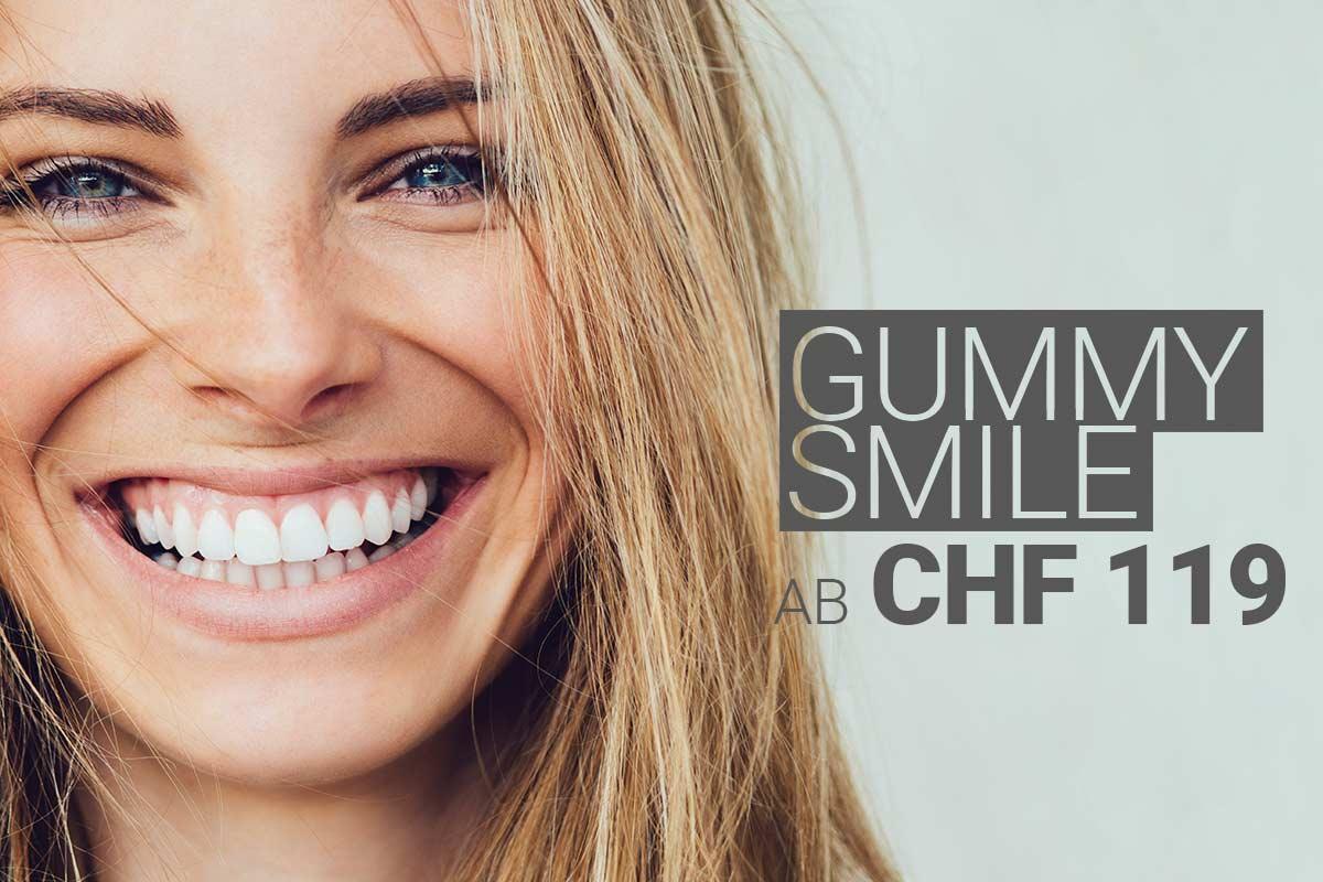 Gummy-Smile-Behandlung mit Muskelrelaxans bei M1 Med Beauty Swiss