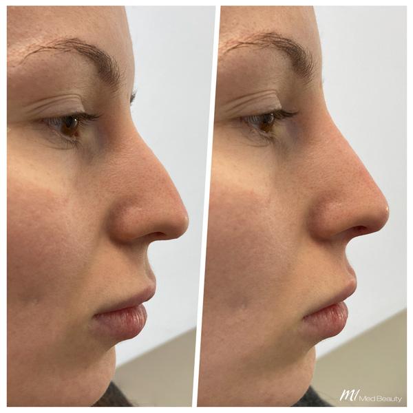 Nasenkorrektur Hyaluron vorher nachher - M1 Med Beauty 06