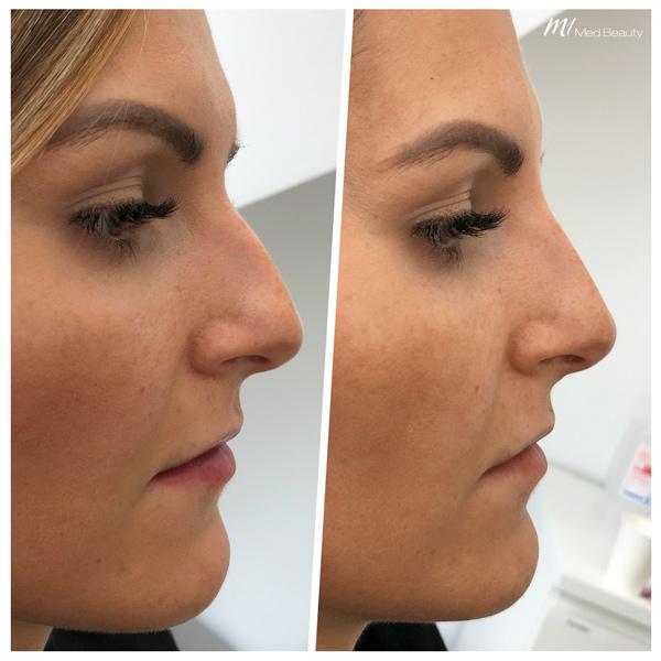 Nasenkorrektur Hyaluron vorher nachher - M1 Med Beauty 03