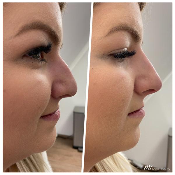 Nasenkorrektur Hyaluron vorher nachher - M1 Med Beauty 05