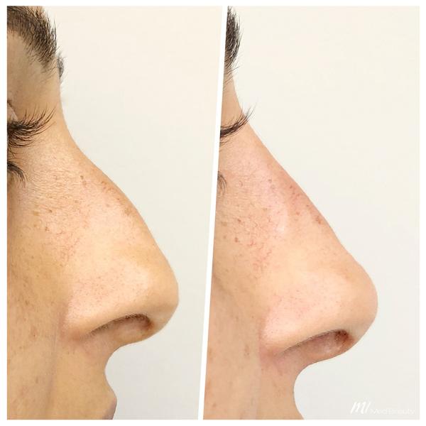 Nasenkorrektur Hyaluron vorher nachher - M1 Med Beauty 02