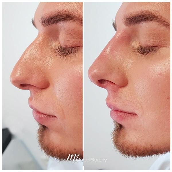 Nasenkorrektur Hyaluron vorher nachher - M1 Med Beauty 04