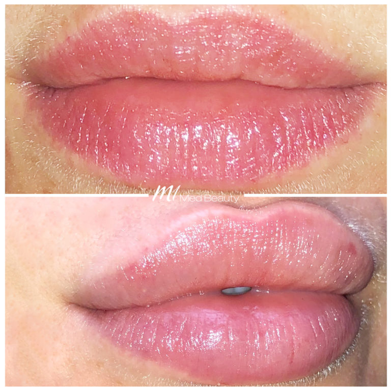 Lippen-aufspritzen-190329_BA.jpg