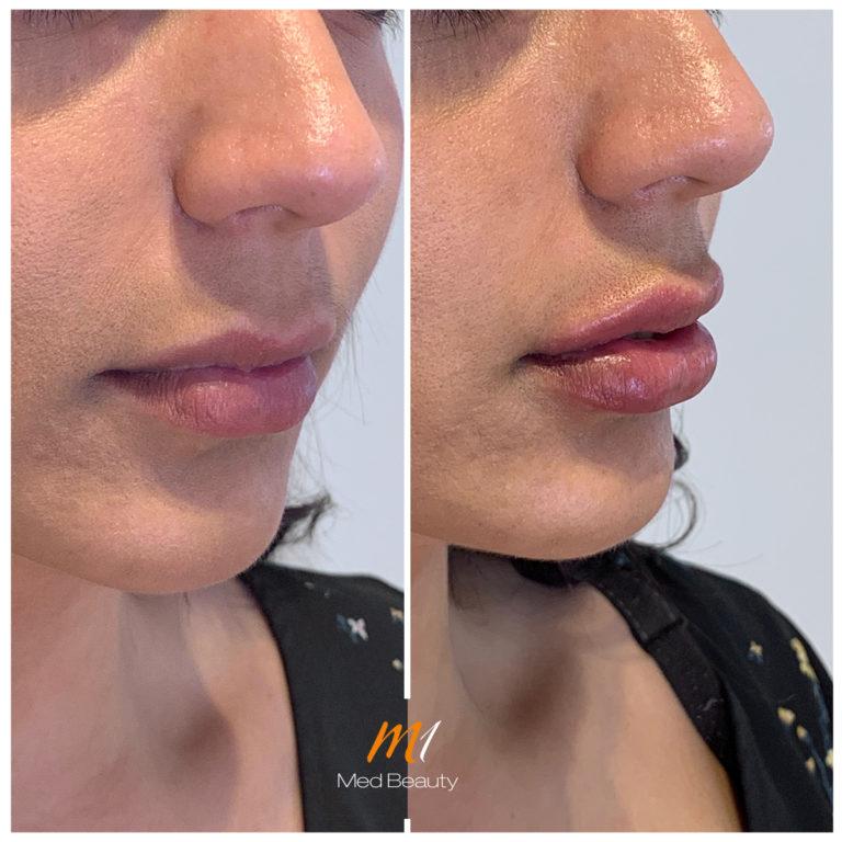 Lippen-aufspritzen-191120_BA.jpg