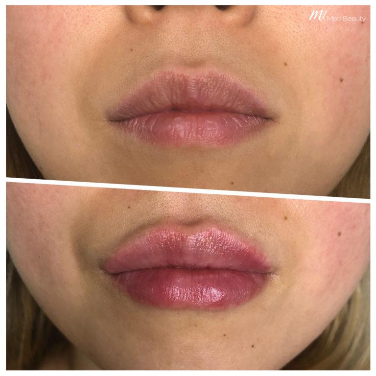 Lippen-aufspritzen-191203_BA.jpg