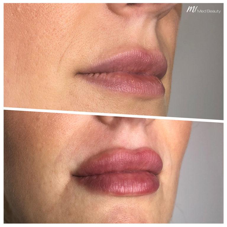 Lippen-aufspritzen-191225_BA.jpg