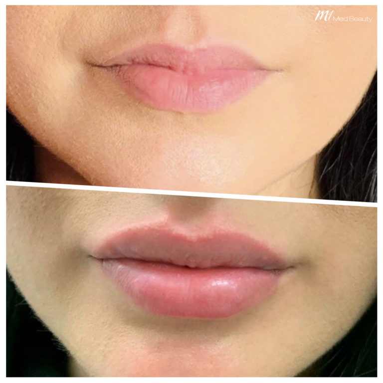 Lippen-aufspritzen-200202_BA.jpg