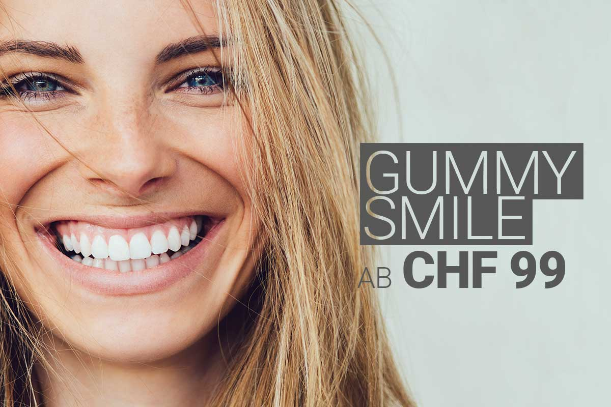 Gummy Smile by M1 Med Beauty