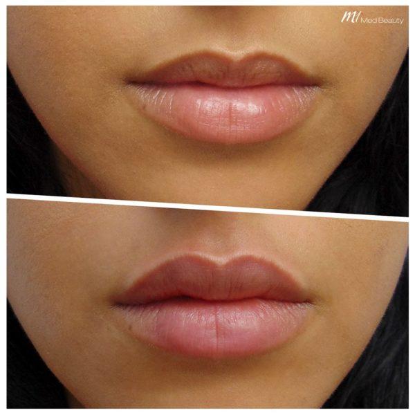 Lippenunterspritzung M1 Med Beauty