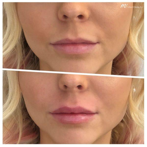 Lippen aufapritzen mit Hyaluronsäure