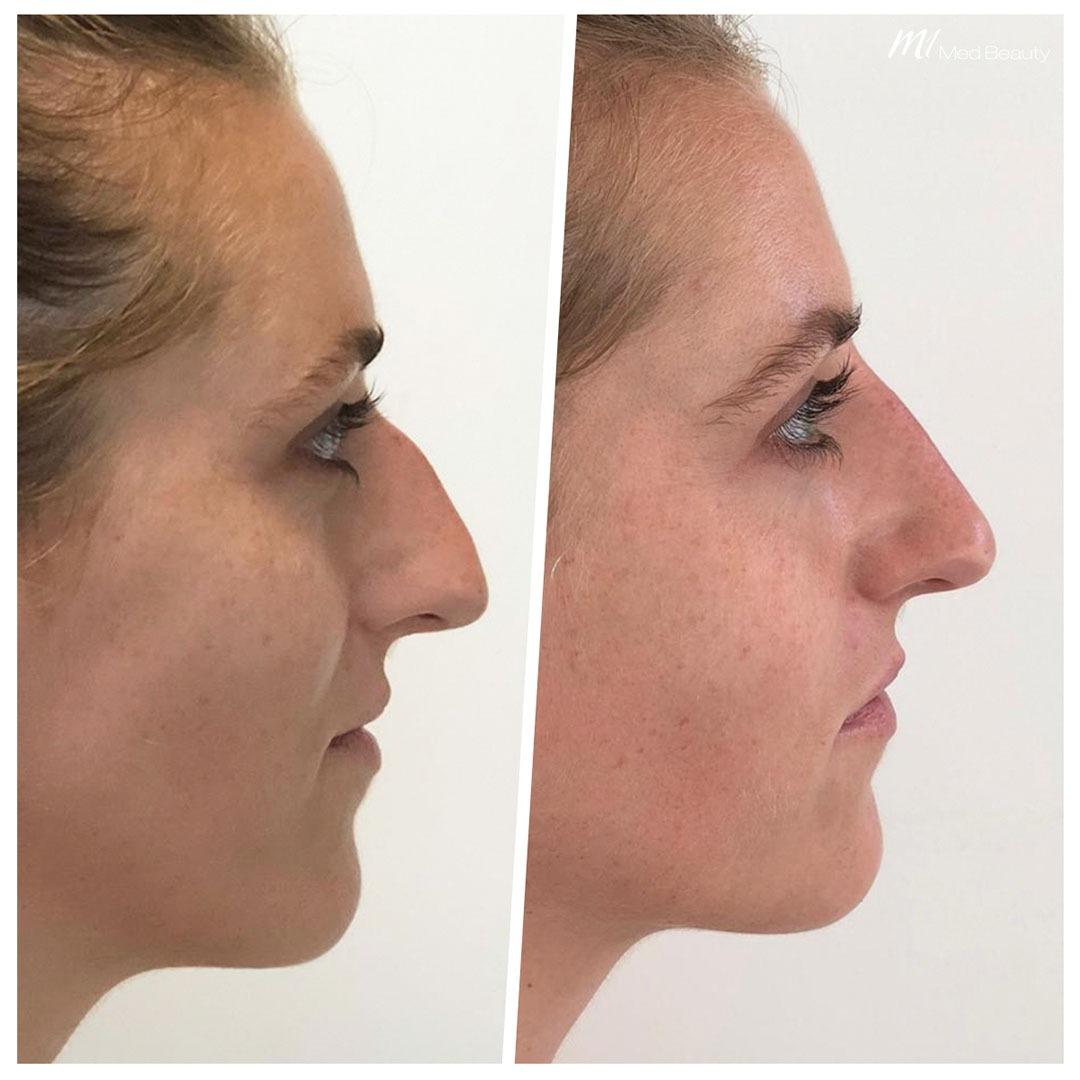 Nachher höckernase op vorher Nasenkorrektur