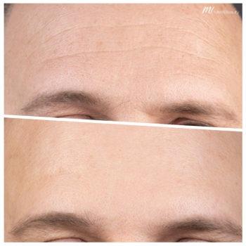 Ergebnis Stirnfalten Unterspritzung