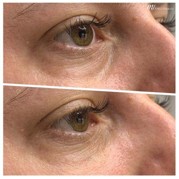 Augenringe entfernen