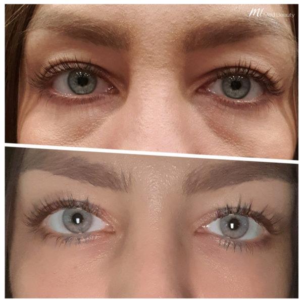 Augenringe unterspritzen