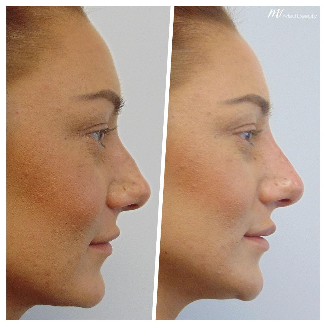 Nasenunterspritzung mit Hyaluron