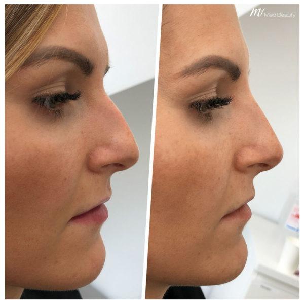 Nasenkorrektur mit Hyaluron