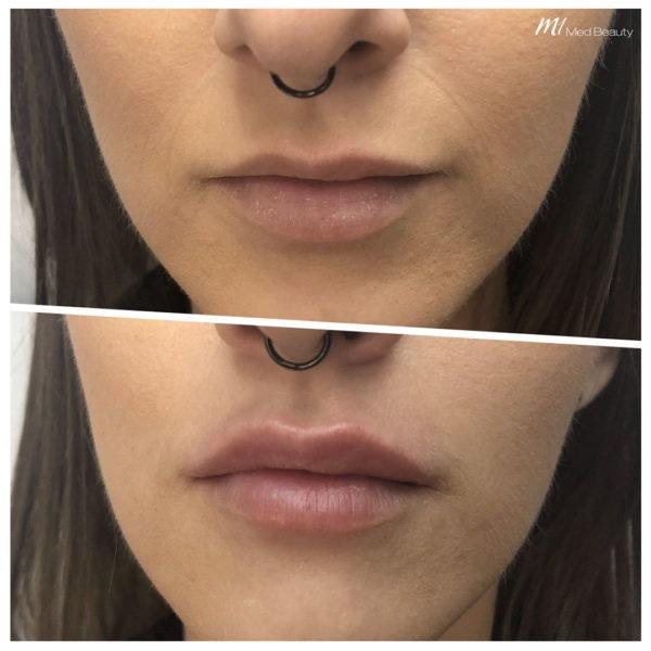 Lippen-Unterspritzung vorher nachher