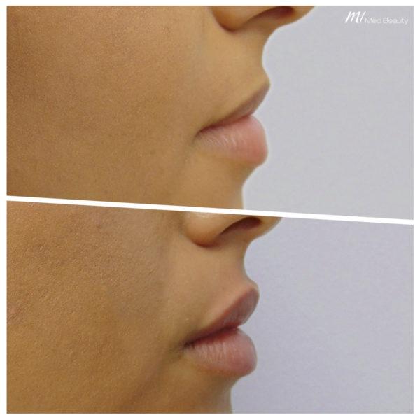 schoene Lippen nach Hyaluronunterspritzung