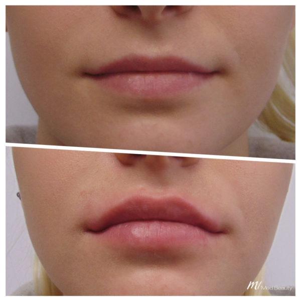 Lippenaufbau mit Hyaluronsäure