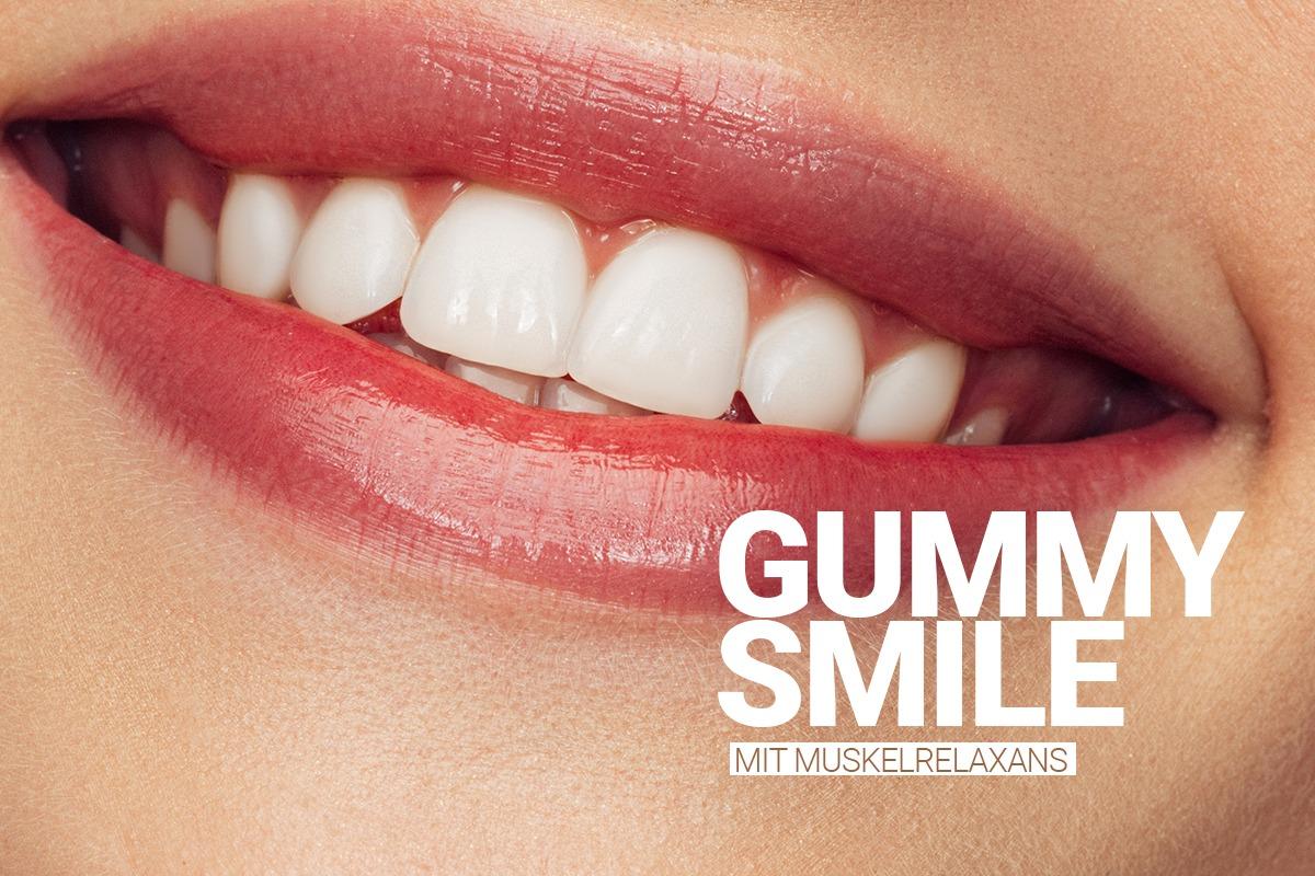 Gummy Smile Behandlung bei M1 Med Beauty