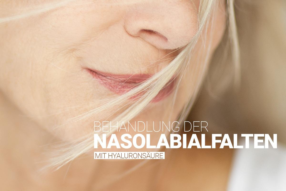 Behandlung von Nasolabialfalten bei M1 Med Beauty