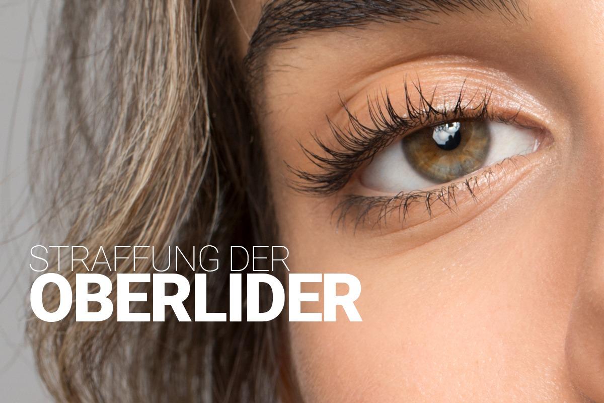 Oberlidstraffung bei M1 Med Beauty, Straffung der Augenlider für ein ein frisches und jugendliches Aussehen