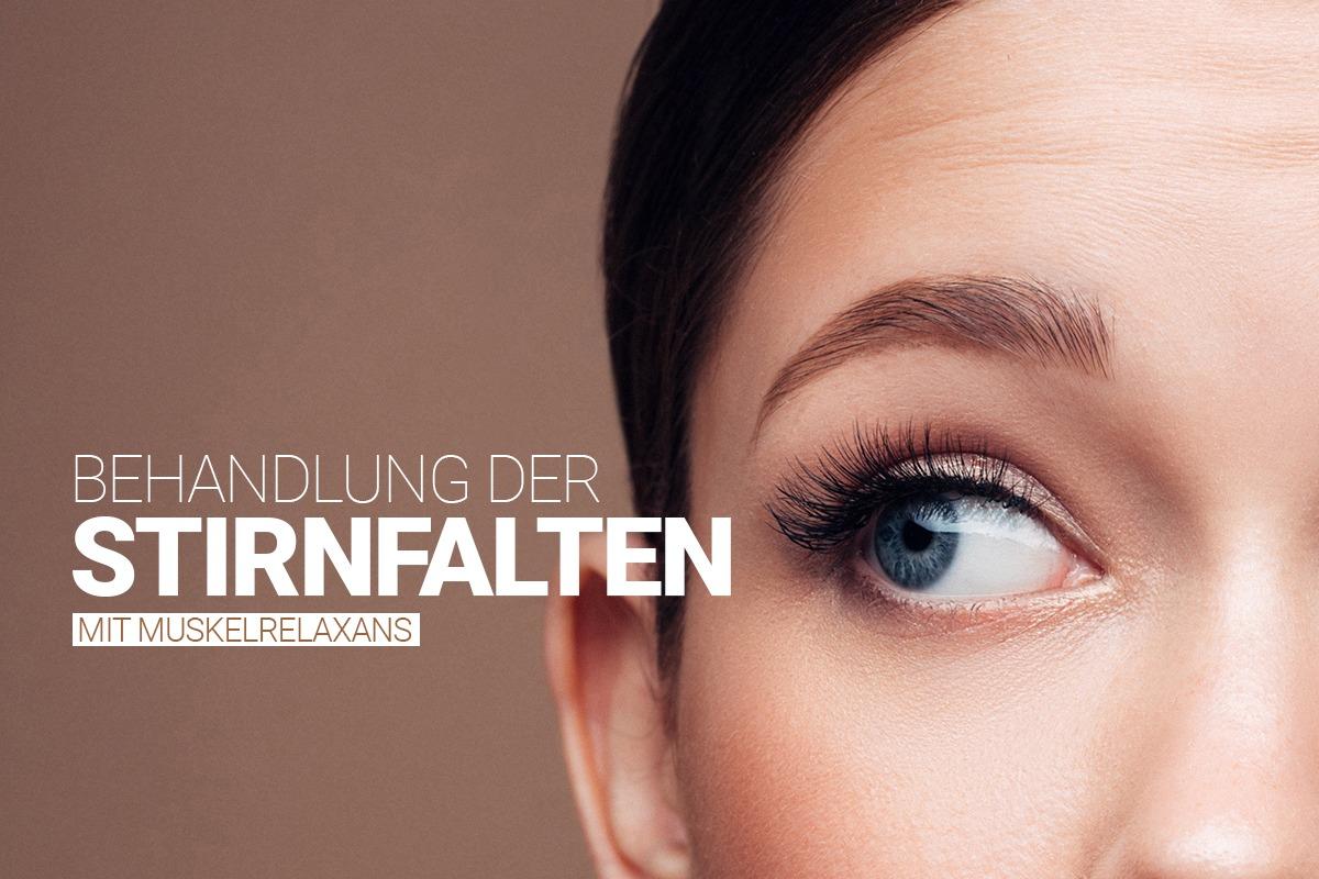 Stirnfalten Behandlung bei M1 Med Beauty