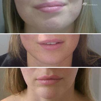 Facial Slimming Ergebnis