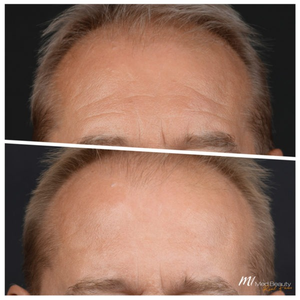 Stirnfalten entfernen mit Muskelrelaxans
